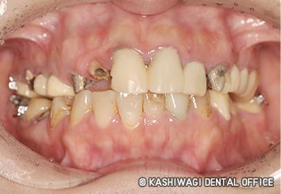 歯周病 症例 begore