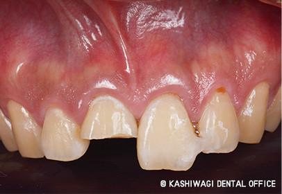 一般歯科 症例 begore