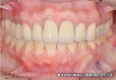 歯周病 症例 after