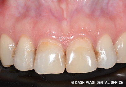 審美歯科 症例 begore