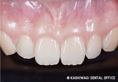 審美歯科 症例 after