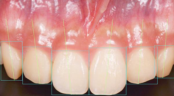 審美歯科 診療内容